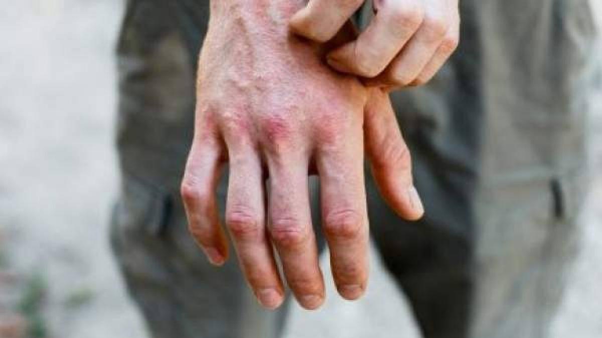 Coronavirus: así podrás diferenciar si una lesión de piel está relacionada con el COVID-19