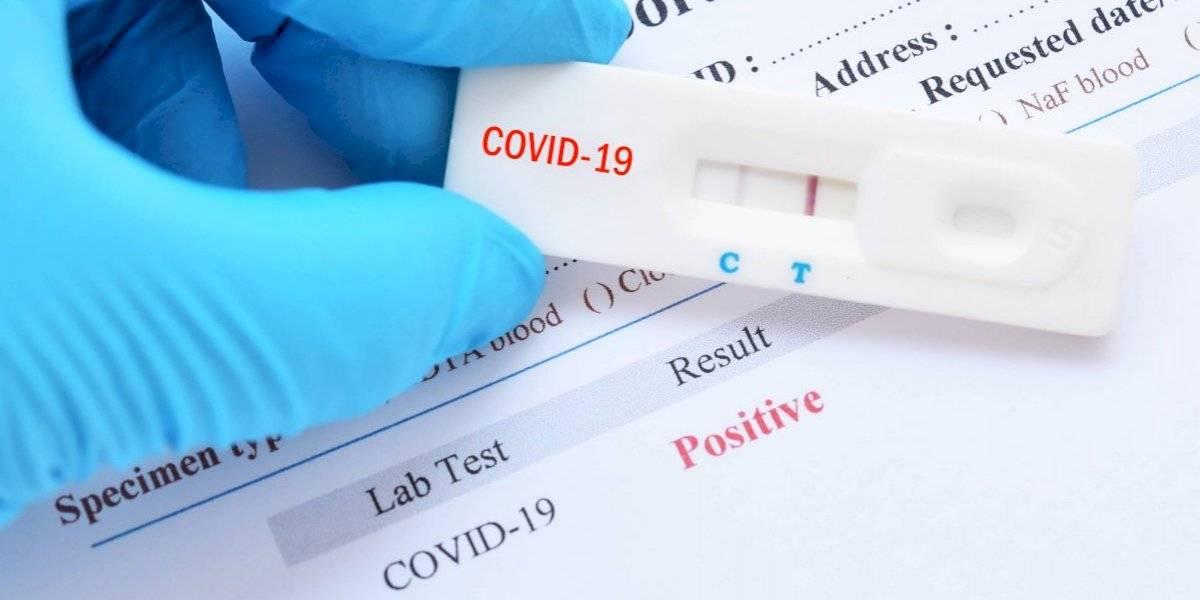 Reportan 191 brotes de COVID-19 durante una semana en julio