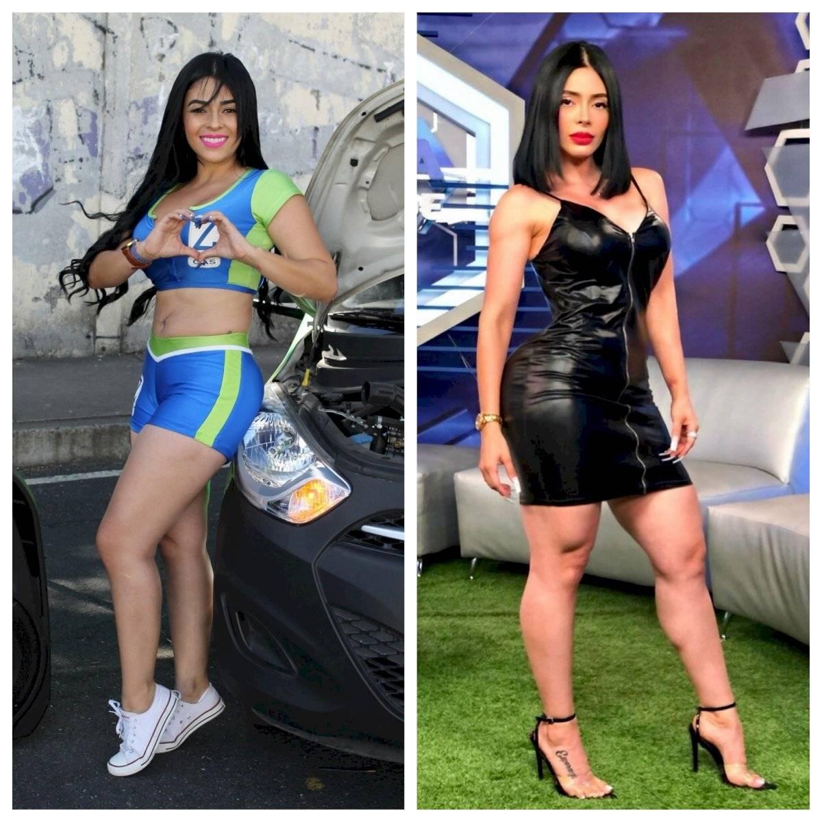 Sandy Gómez antes y después