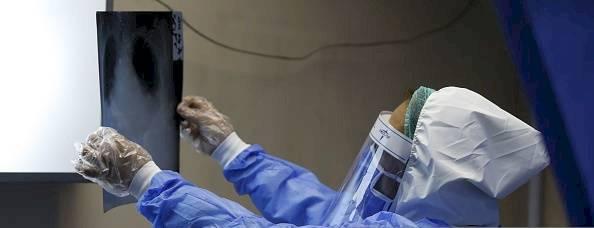 Un médico del Hospital Universitario al-Assad en la capital siria, Damasco, revisa la radiografía de pulmón de un paciente en el departamento especial designado para la prueba de personas con síntomas de COVID-19 para aislarlos