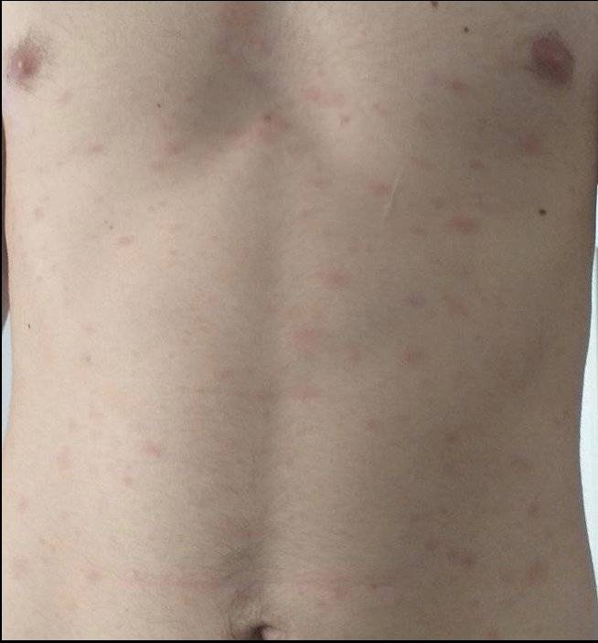 Las cinco manifestaciones en la piel generada por el COVID-19