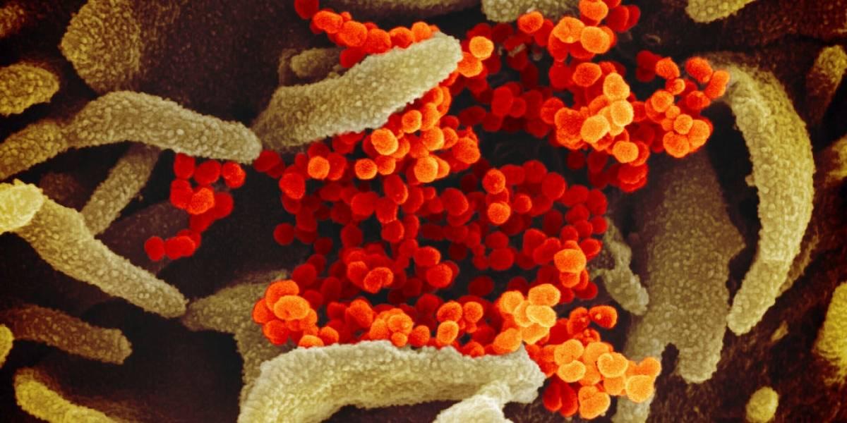 COVID-19: Ya van 2,805 contagios y las muertes se mantienen en 124