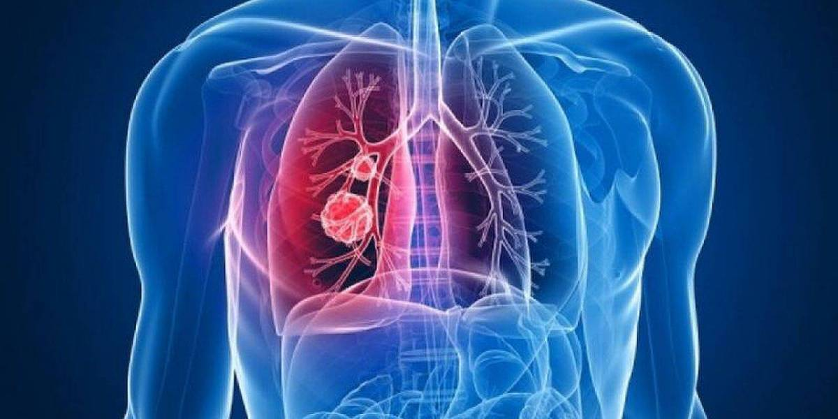 Coronavirus: pacientes asintomáticos desarrollan también daño pulmonar