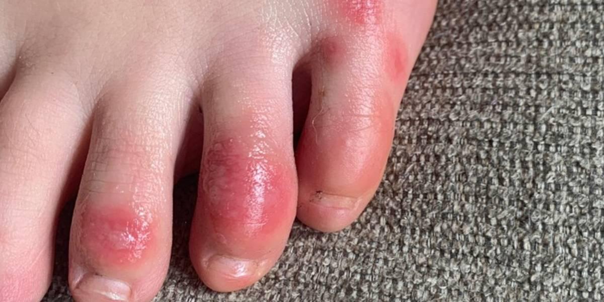 Dolencia dermatológica podría ser otro síntoma de COVID-19