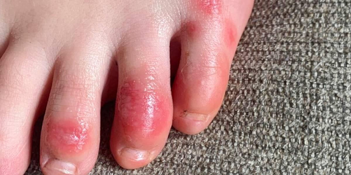 ¡Atentos! Que este maldito virus ataca de diferentes formas: dolencia dermatológica podría ser otro síntoma de covid-19