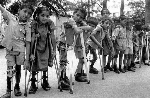 Niños con polio