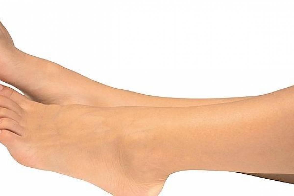 medicina casera para la hinchazón de los pies