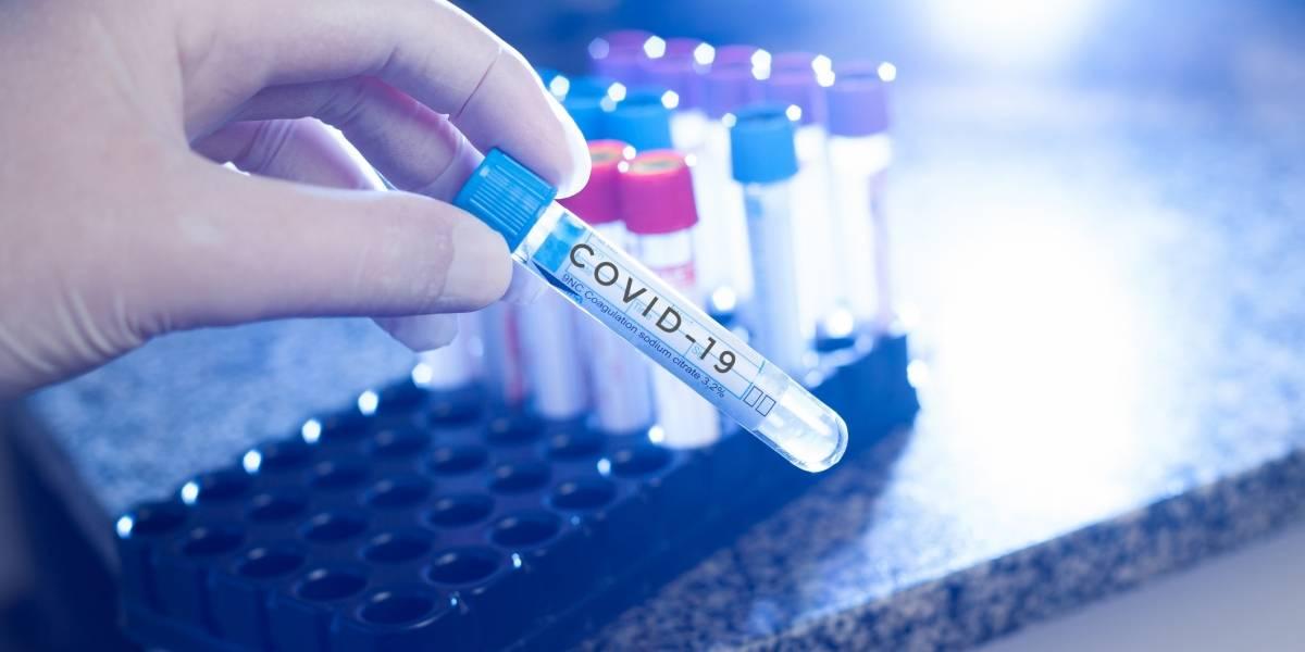 Cooperativa de Laboratorios Clínicos asegura pruebas para COVID-19 están aprobadas por FDA
