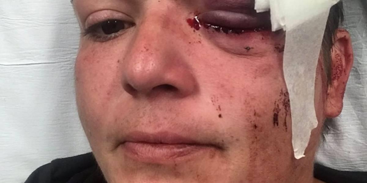 Fotoperiodista pierde visión en el ojo izquierdo durante protesta en Minneapolis