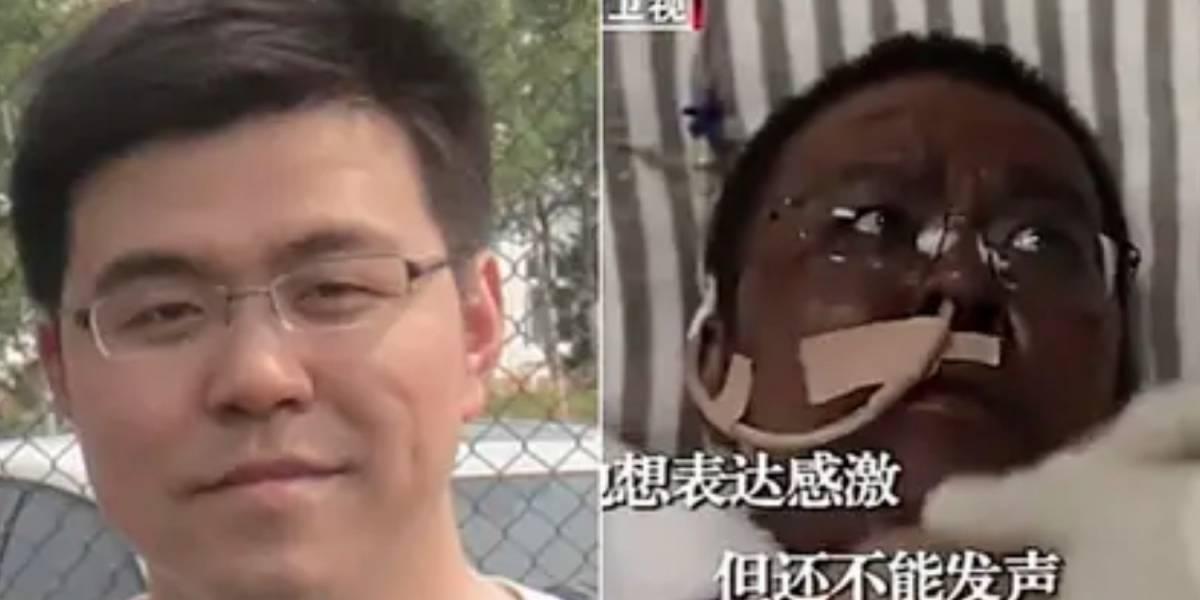 Fallece uno de los médicos chinos que cambió de color al contraer coronavirus