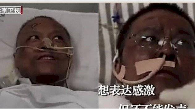 Médico chino que desarrolló extraña patología en su piel