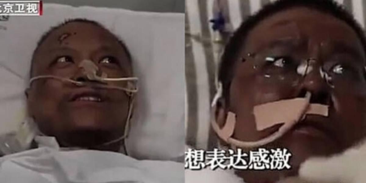 Falleció el médico chino que desarrolló extraña patología en su piel a causa del coronavirus