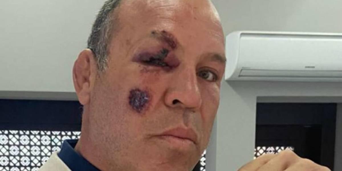 Astro do MMA, Wanderlei Silva é atropelado e sofre fratura em Curitiba