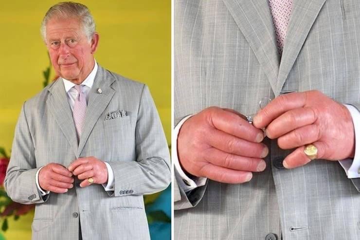 Las manos del príncipe Carlos se notan preocupantemente hinchadas