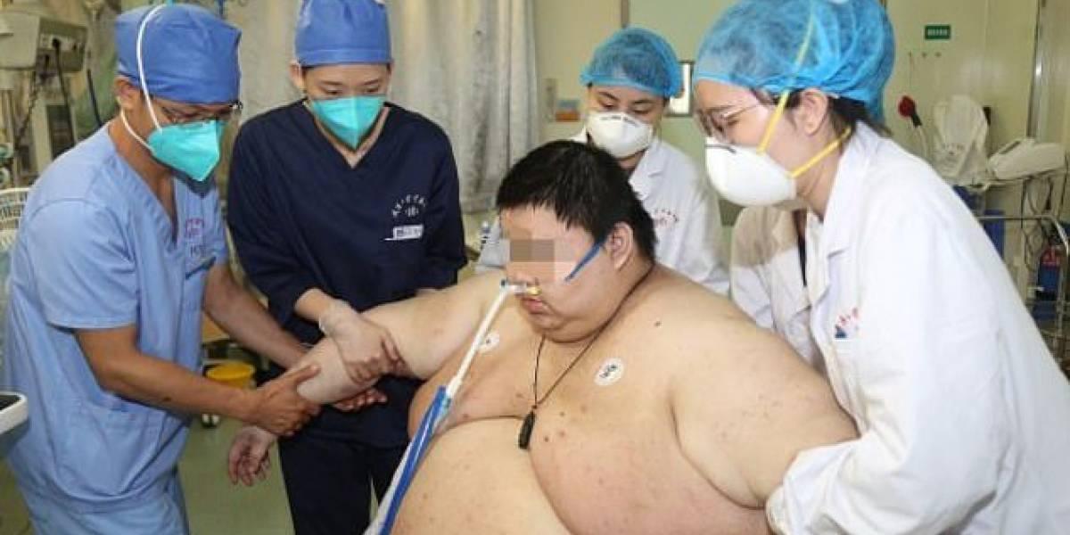 Hombre engordó 100 kilos en cinco meses de cuarentena