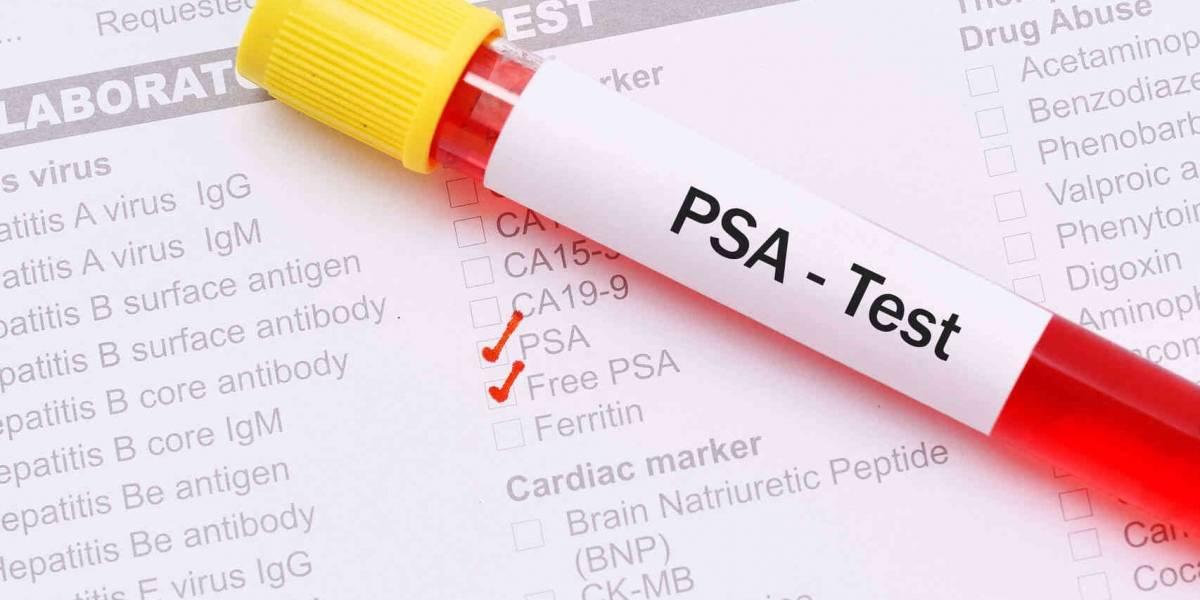 Ciencia: innovadora prueba de cáncer podría ser 10 veces más efectiva que las actuales