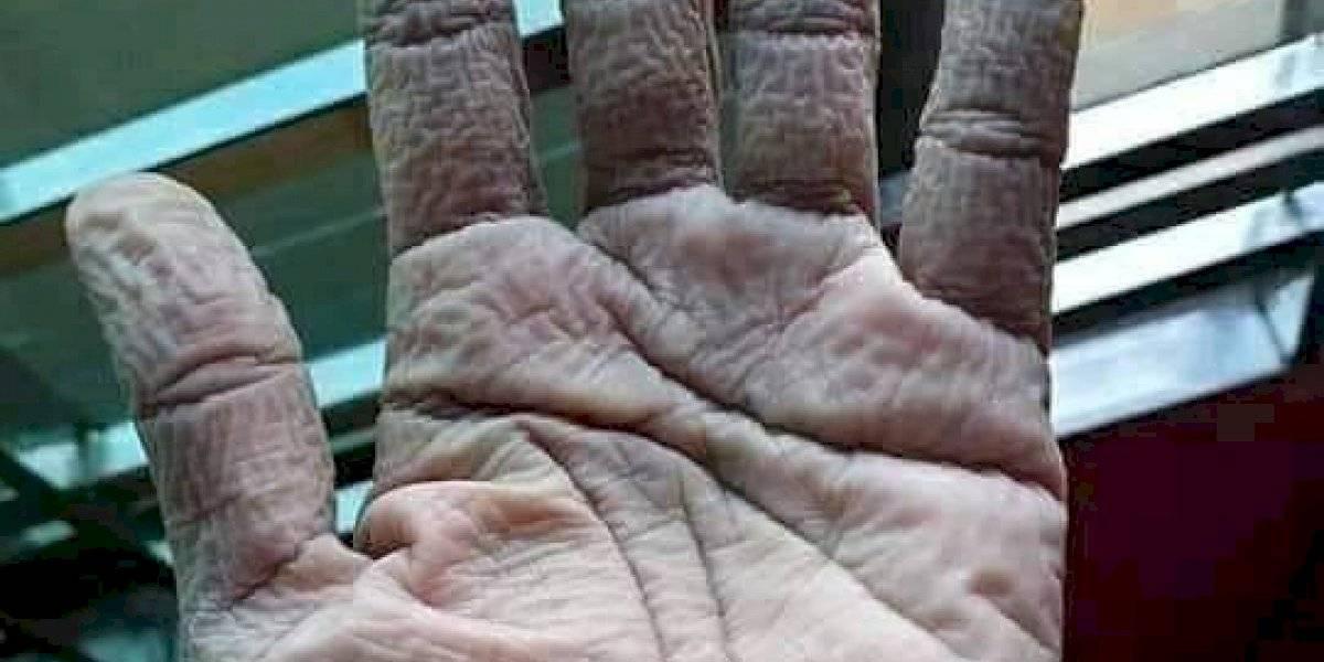 Médico sube foto de su mano tras usar por 10 horas guante protector y revienta las redes