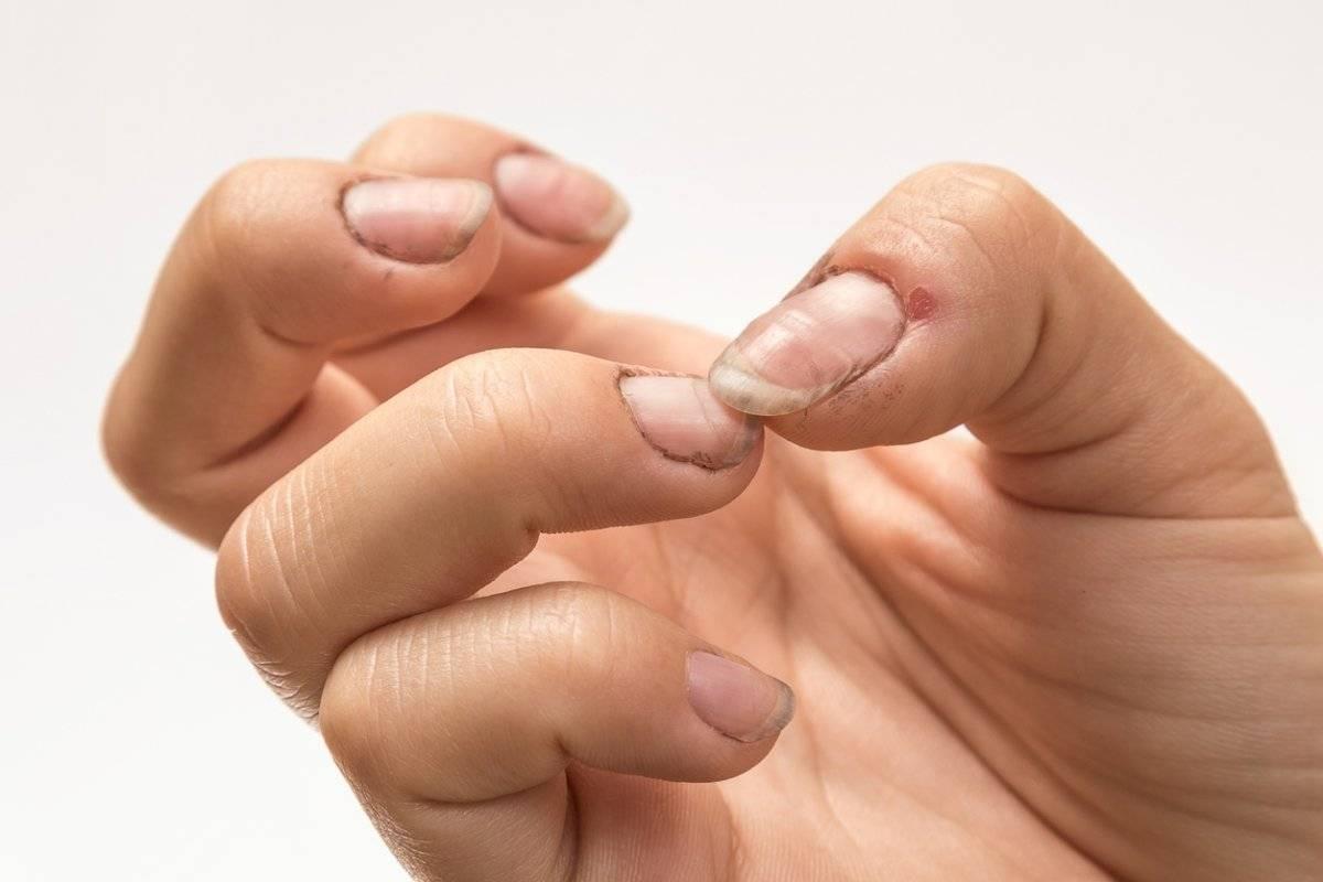 El espacio entre las uñas y la piel de los dedos es un lugar perfecto para la proliferación de bacterias