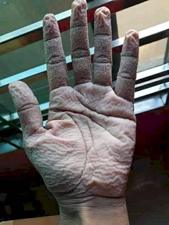 Así queda la mano de un médico al quitarse los guantes protectores tras 10 horas de trabajo