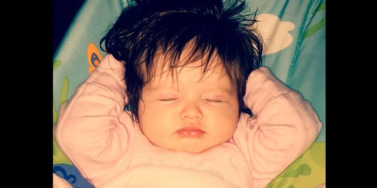 Bebê cabeluda chama atenção de pais e médicos