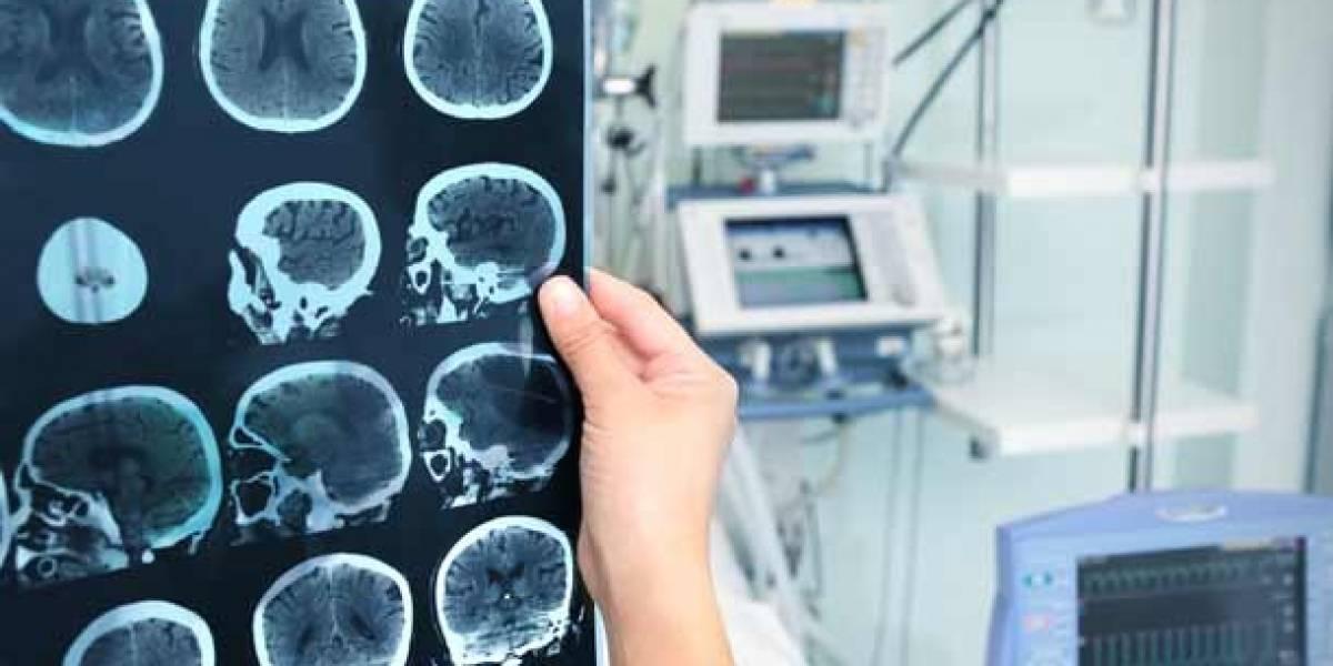 Accidentes cerebrovasculares cobran la vida de 4.500 ecuatorianos al año