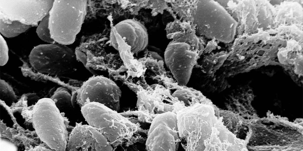 China também registra caso suspeito de peste negra