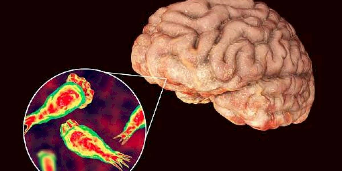 Ameba come cerebros: estos los síntomas de la enfermedad que alertó a Florida