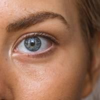 Mitos e verdades sobre as manchas na pele que você deve saber