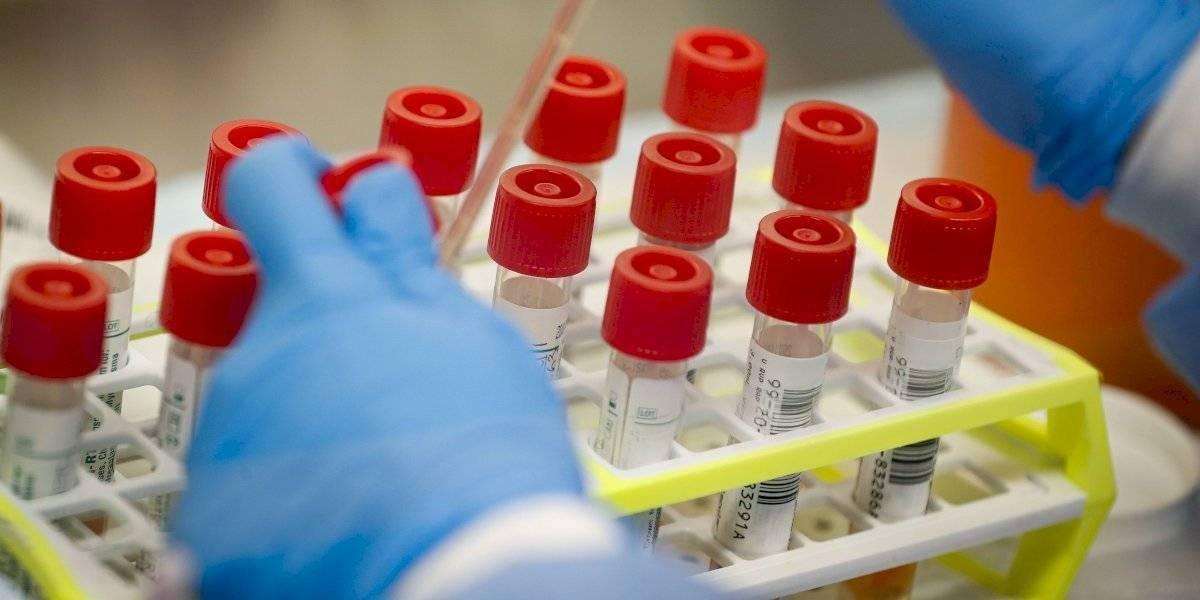 """Dos vacunas experimentales contra el coronavirus reciben la designación de """"vía rápida"""""""