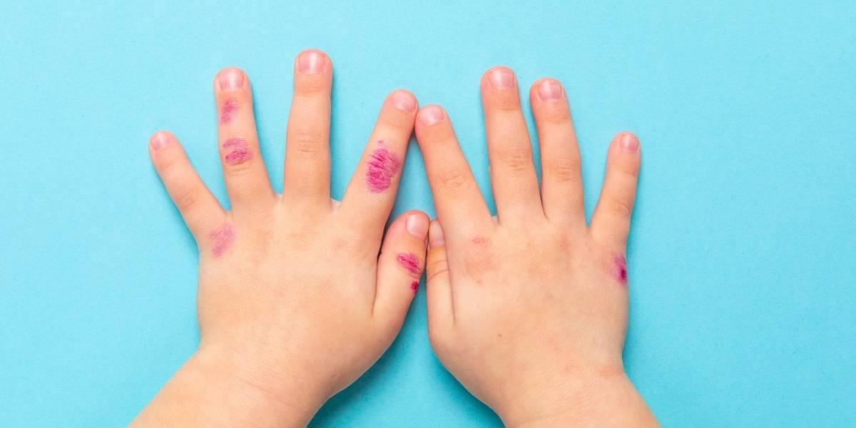 Dermatite atópica atinge 25% das crianças