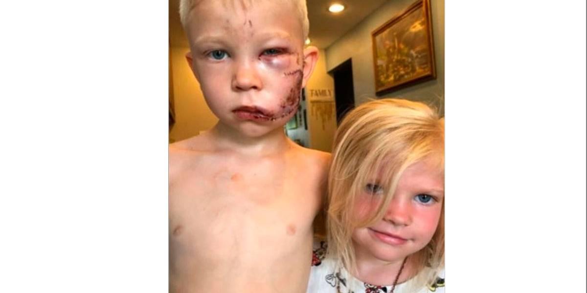 Garoto de 6 anos vira herói nas redes ao lutar contra cachorro para defender irmã