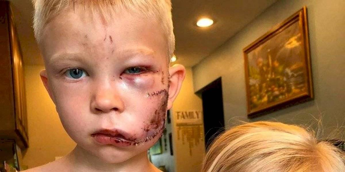 Niño salvó a su hermana de un perro: Vengadores reaccionaron de esta manera