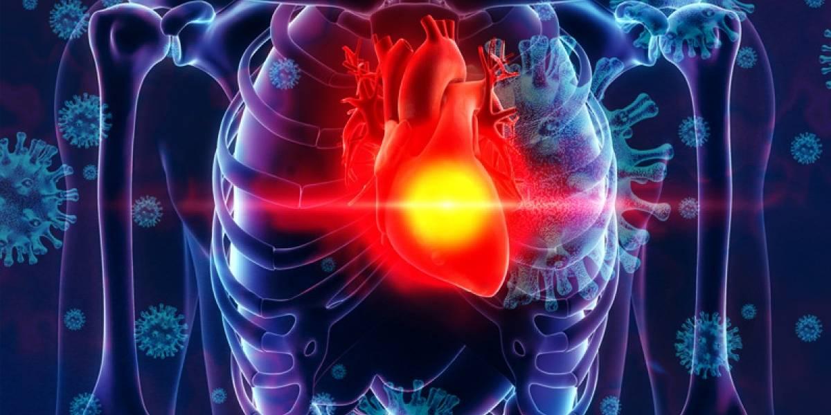COVID-19: La mayoría de pacientes recuperados queda con problemas cardíacos