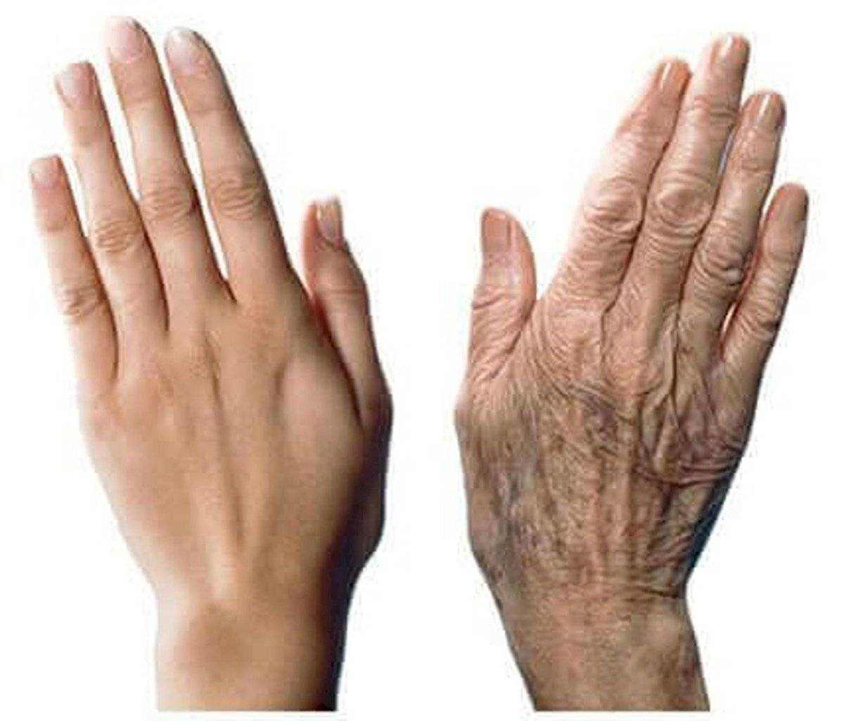 Manchas en la piel