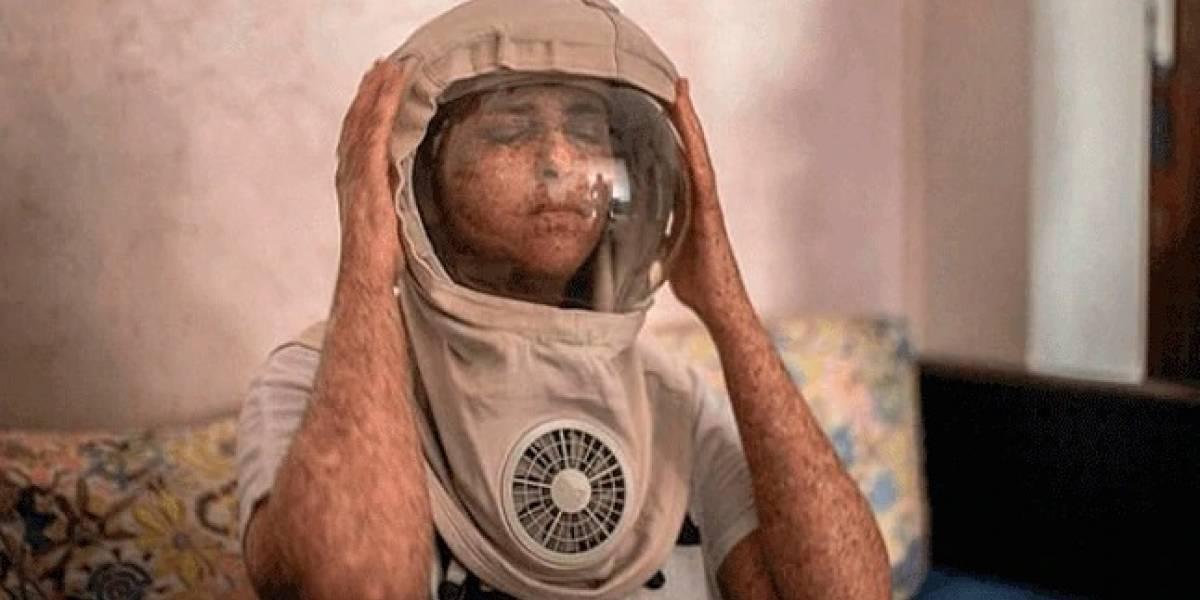 Mujer alérgica al sol vive de noche y usa un casco de astronauta