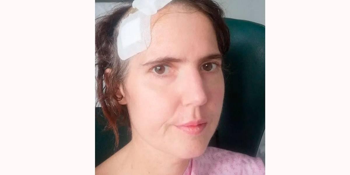 Dor de dente vira infecção no cérebro e quase mata mulher de 35 anos