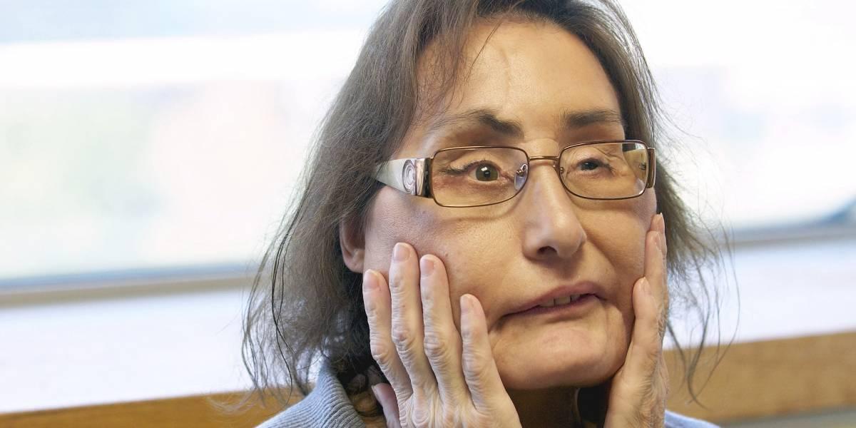 Fallece primera receptora de trasplante facial parcial en Estados Unidos