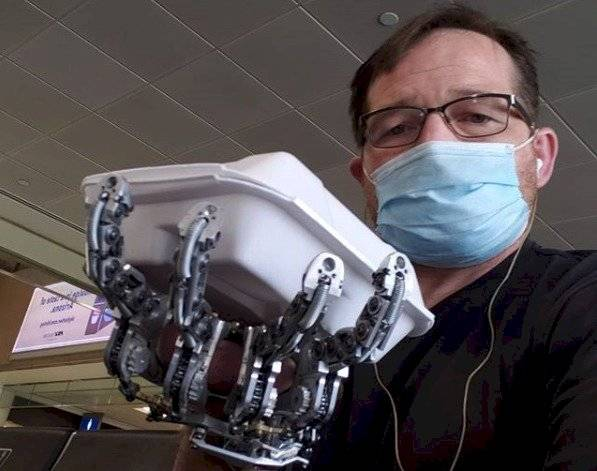 Ian Davis y su prótesis