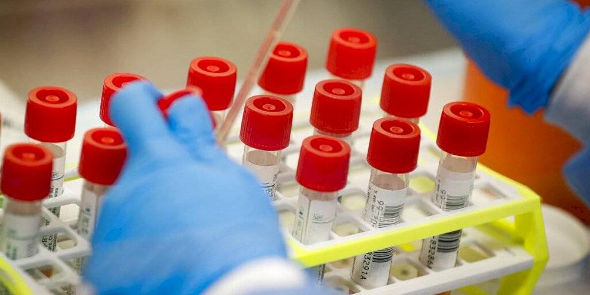 Pruebas para coronavirus son insuficientes para asilos en Estados Unidos