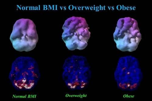 Cerebro y obesidad