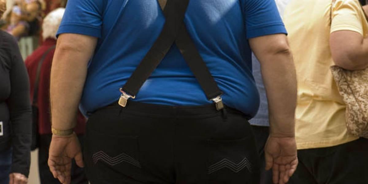 Este es el durísimo efecto de la obesidad sobre las funciones del cerebro