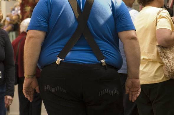 Obesidad y su influencia en el cerebro