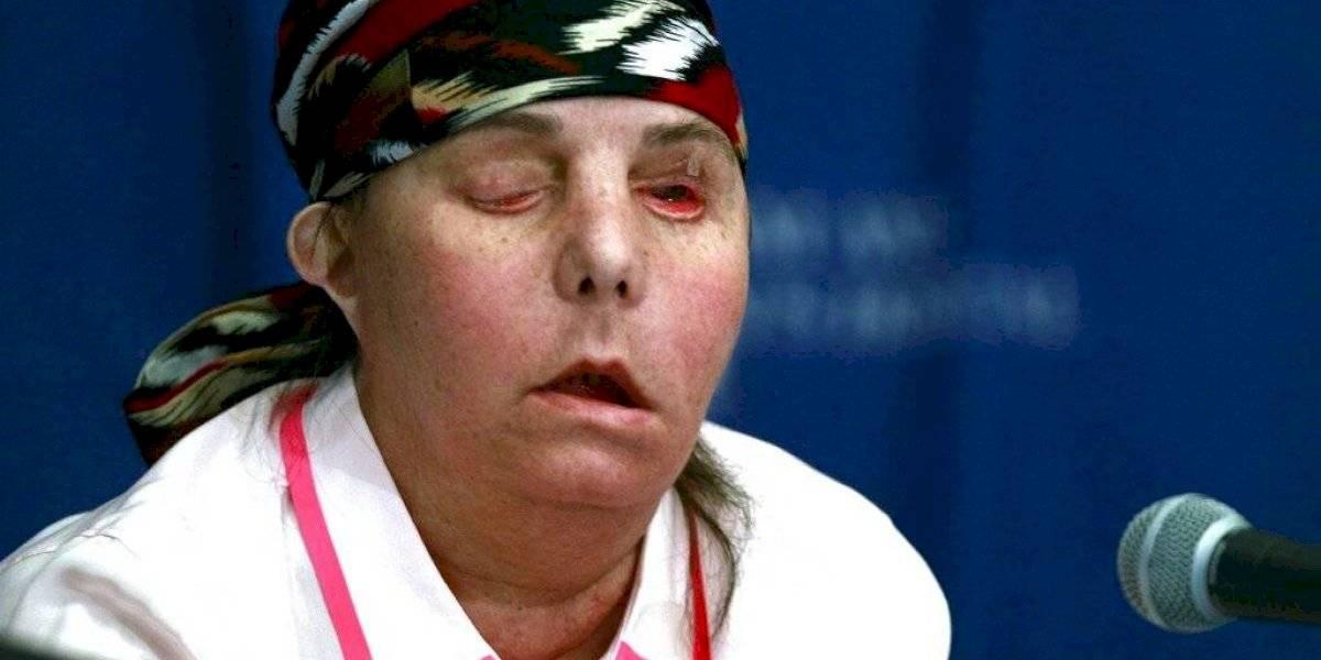 Realizan segundo transplante de cara a una mujer en Estados Unidos