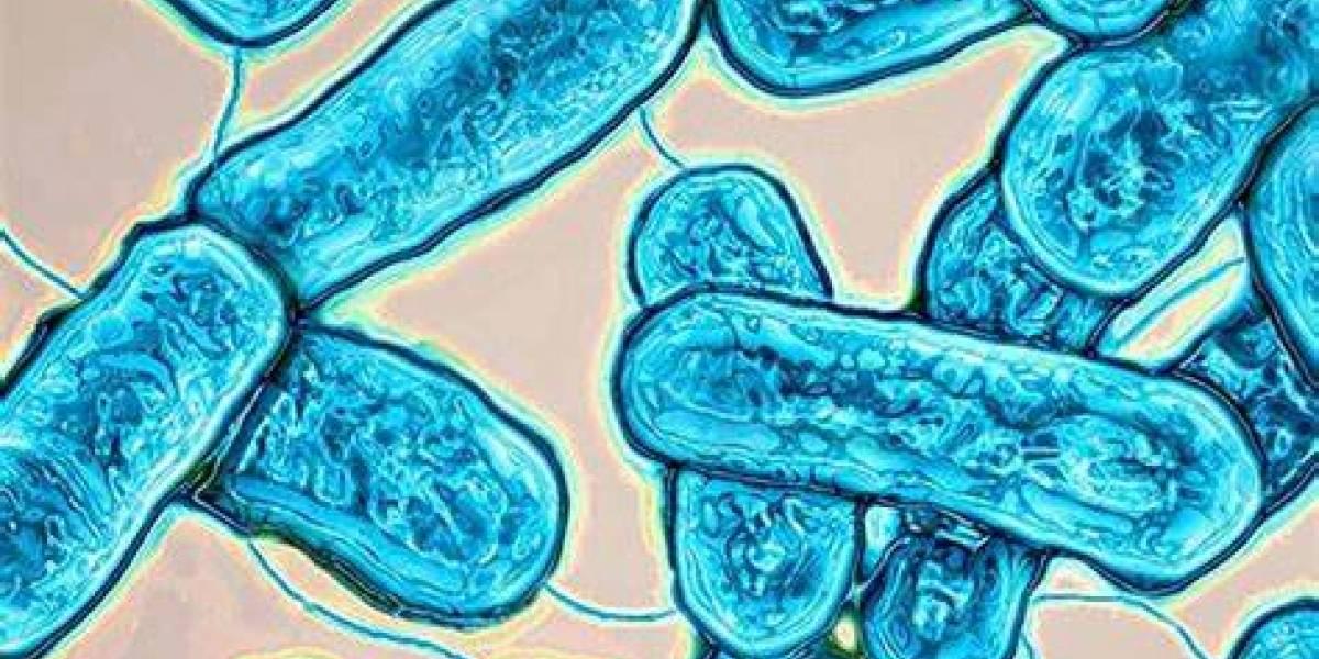 Descubren bacteria en oficinas que estuvieron cerradas por la cuarentena
