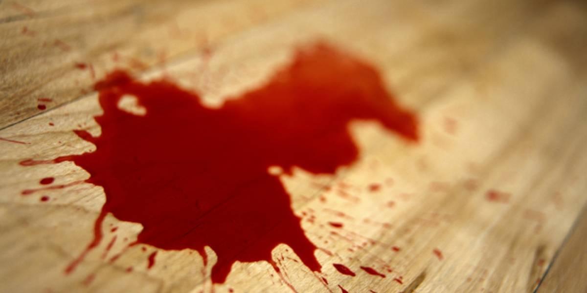 ¿Soñaste con sangre y no sabes lo que significa?