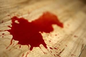 https://www.metroecuador.com.ec/ec/estilo-vida/2020/08/14/sonaste-sangre-no-sabes-lo-significa.html