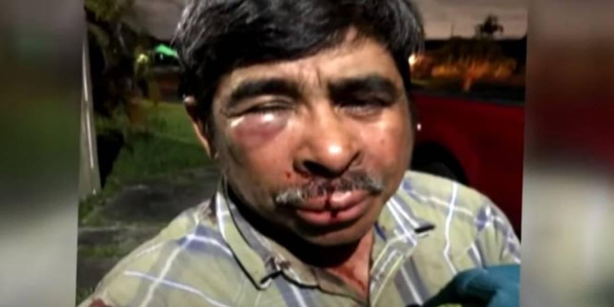 Golpean brutalmente a mexicano mientras paseaba a su perra en Miami