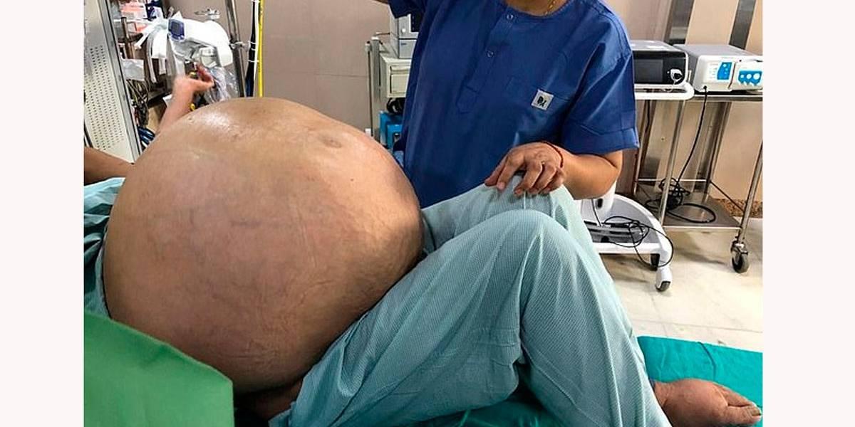 Mulher de 52 anos retira do ovário tumor de 50 kg, maior do mundo