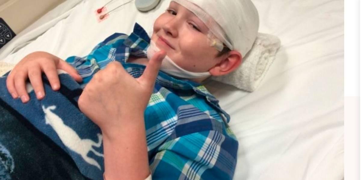 Adolescente sofre de síndrome rara que transforma pele em pedra