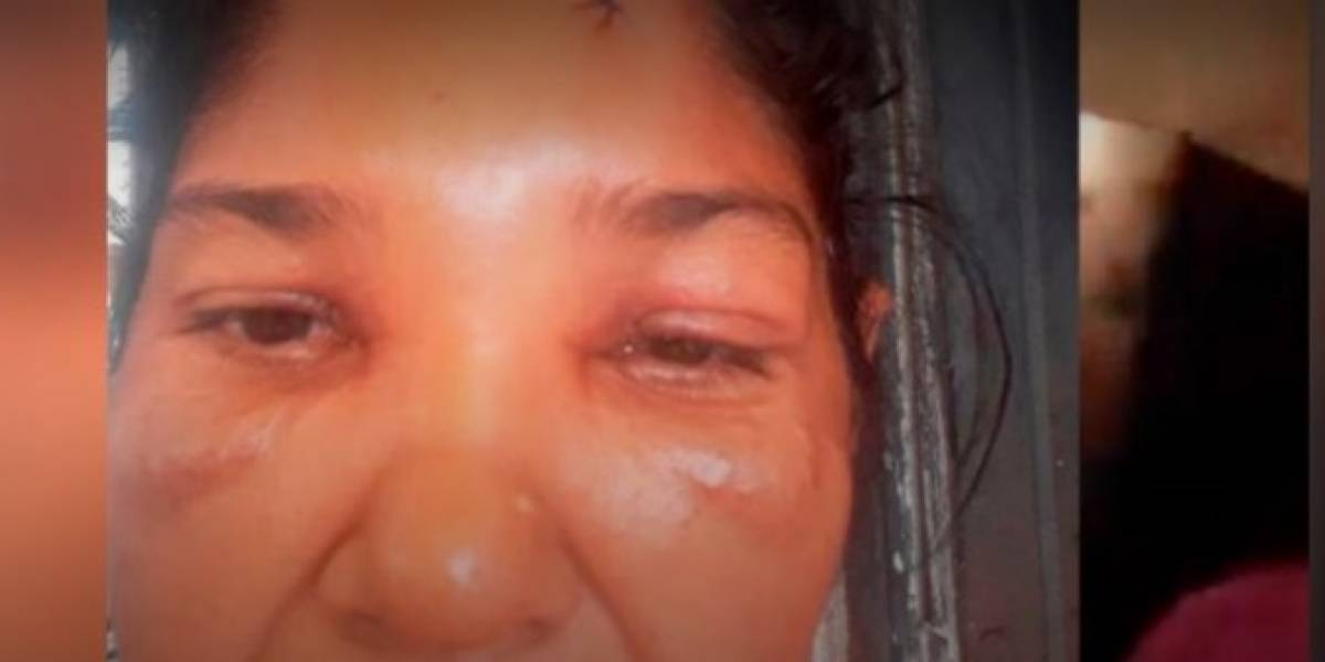 Mujer denunció que recibió 16 puntos de sutura tras ser herida en procedimiento policial